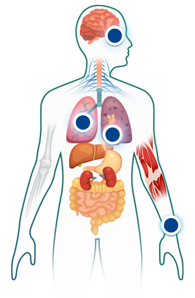 dirofilariosis